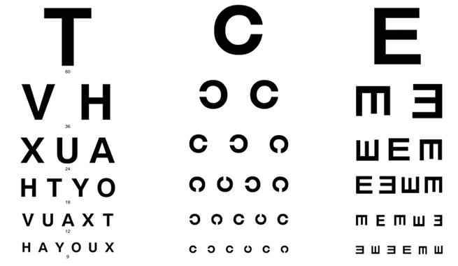 Alteraciones visuales comunes