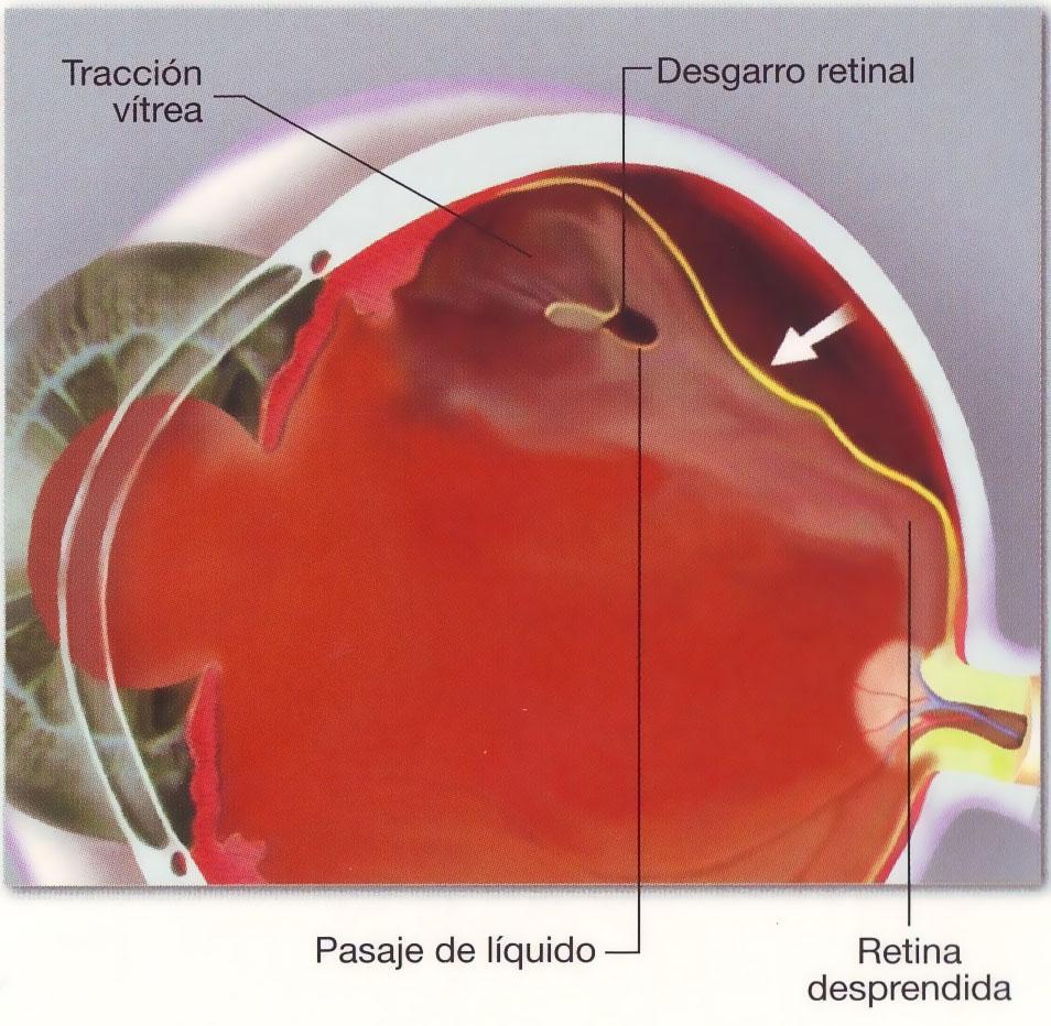 Traumatismos oculares severos